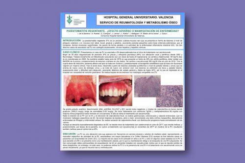 Pioestomatitis vegentante, ¿efecto adverso o manifestación de enfermedad?