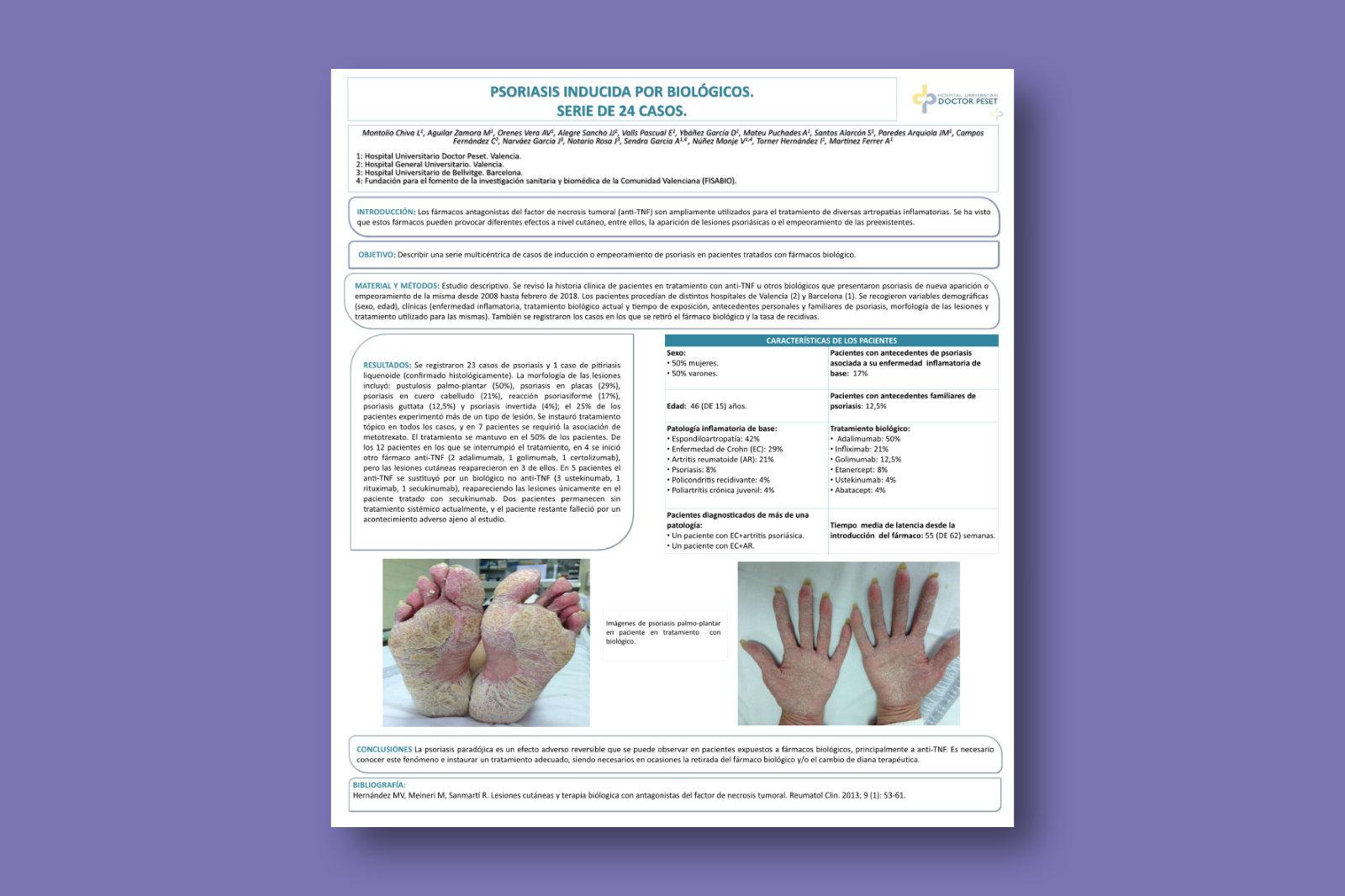 Psoriasis inducida por biológicos. Serie de 24 casos