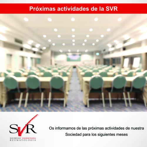 Próximas actividades de la SVR