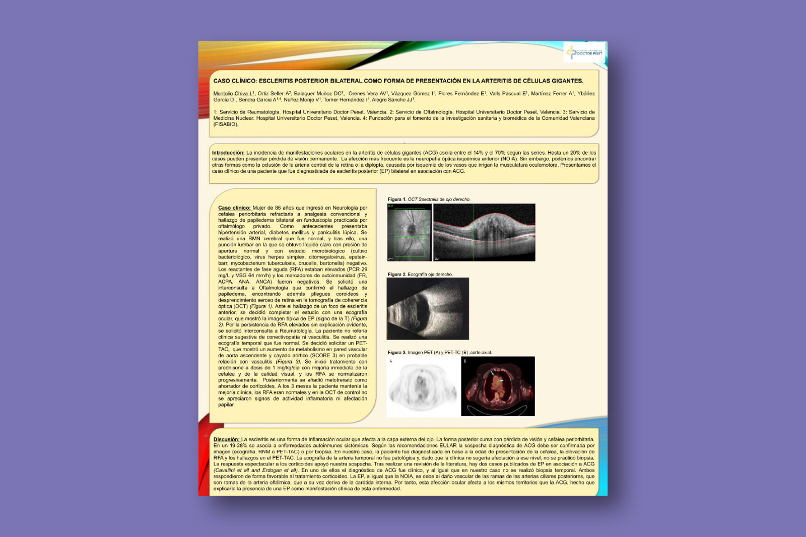 Caso clínico: escleritis posterior bilateral como forma de presentación en la arteritis de células gigantes
