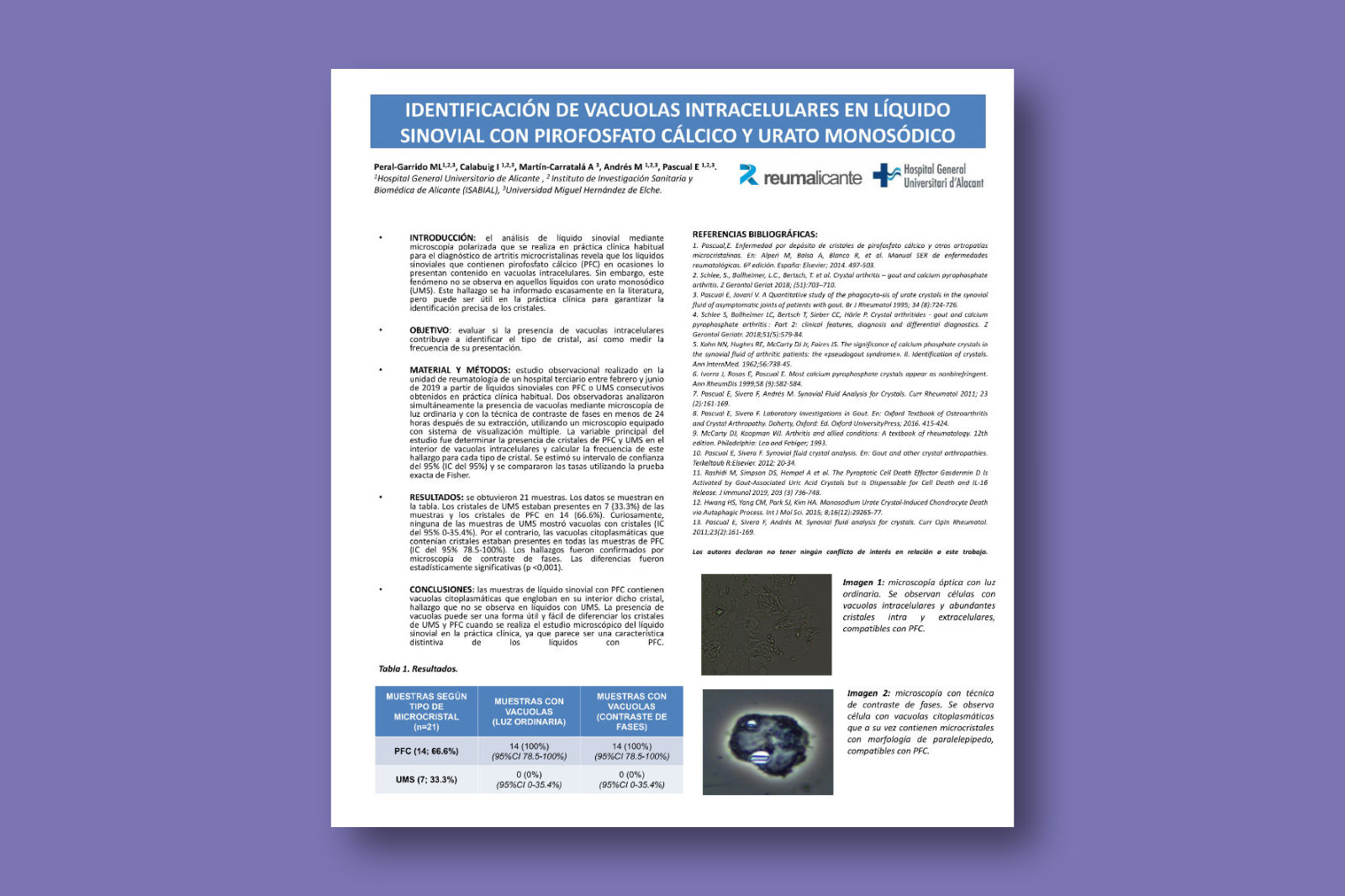 Identificación de vacuolas intracelulares en líquido sinovial con pirofosfato cálcico y urato monosódico